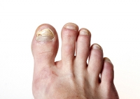 Precautions to Prevent Fungal Nails