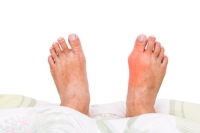 What to Expect If a Bunion Develops on Your Toe
